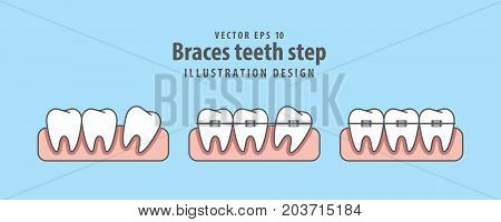 Braces Teeth Step Illustration Vector On Blue Background. Dental Concept.