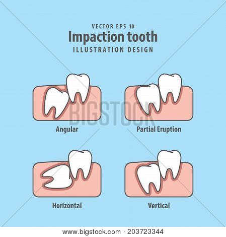 Impaction tooth illustration vector on blue background. Dental concept. poster