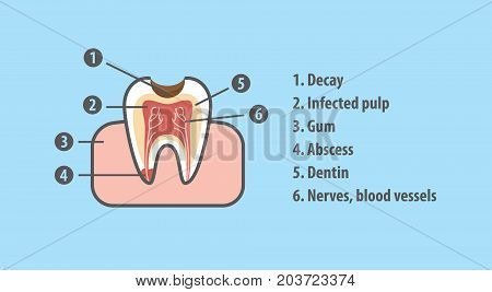 Structure Of Tooth Illustration Vector On Blue Background. Dental Concept.