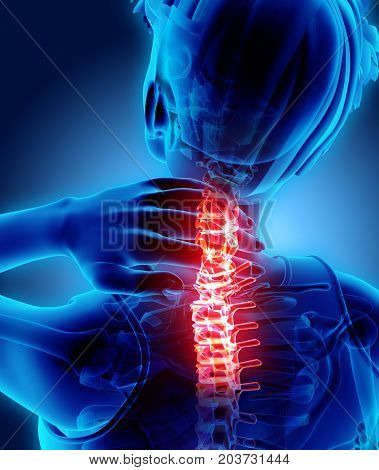 Neck Painful - Cervical Spine Skeleton X-ray, 3D Illustration.