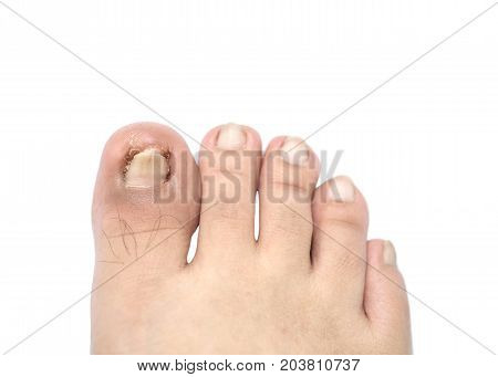 Closeup ingrown nail at the big toe of a man isolated on white background with clipping path