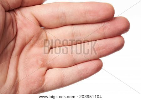 Hand palm with blister close up isolated on white background