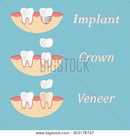 Teeth Procedure Of Implant, Crown, Veneer Restoration. Process Stomatology Prosthesis