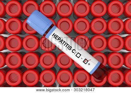 Blood Test Flask Tube With Hepatitis C Positive Result Over Rows Of Test Flask Tube Extreme Closeup.
