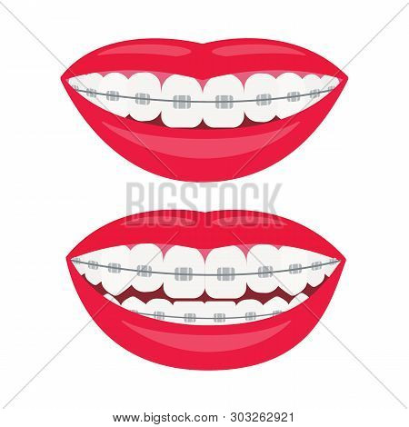 Dental Braces. Smile With Braces On The Teeth. Alignment Of Bite Of Teeth, Correct Bite Of Teeth. De