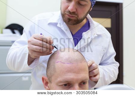 Baldness Treatment. Patient Suffering From Hair Loss In Consultation With A Doctor. Preparation For