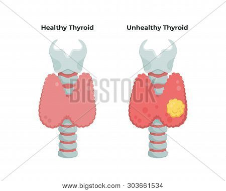 Healthy Thyroid Gland And Unhealthy Thyroid With Inflammation And Lump, Thyroid Cancer Concept, Flat