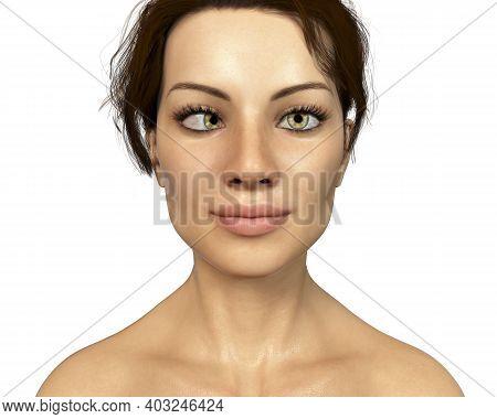 Strabismus, 3d Illustration Showing Esotropia, A Type Of Eye Deviation When Eye Turns Inward