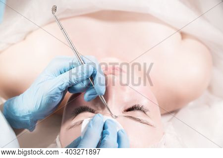 Mechanical Facial Cleansing Procedure In A Beauty Salon. Caucasian Young Model Receiving Cosmetic Fa