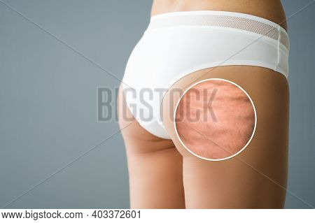 Cellulite Inflammation On Legs Closeup. Medical Liposuction