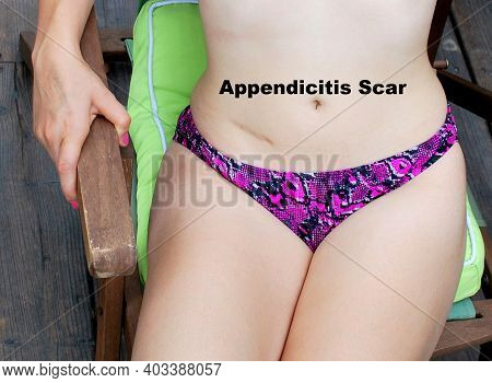 Female In A Bikini Showing The Scar On Her Tummy From Having Appendicitis Surgery.