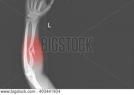 X-ray Forearm Ap Views Showing Fracture Or Broken Proximal Left Radius And Soft Tissue Swelling On R