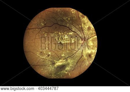 View Inside Human Eye Disorders Showing Retina, Optic Nerve And Macula Severe Age-related Macular De