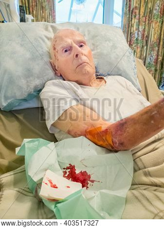 A 95 Year Old Man\'s Torn Skin Injury That Occured Whilst Being Moved By Carers At His House Where H