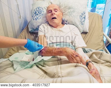 Arm Injury,elderly Man Being Medically Treated At Home,united Kingdom 2021.