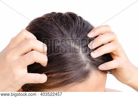 Yong Woman Hand Itchy Scalp Dandruff Problem, Hair Care Concept