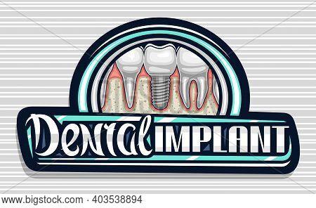 Vector Logo For Dental Implant Clinic, Dark Decorative Sign Board With Illustration Of Porcelain Mol