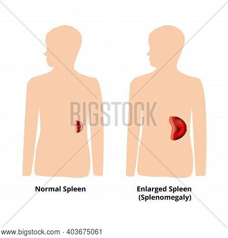 Splenomegaly Of The Spleen. Enlargement Of The Spleen. Vector Illustration On Isolated Background