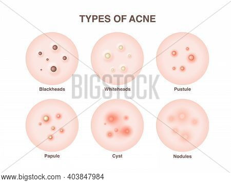 Types Of Acne, Pimples, Skin Pores, Blackhead, Whitehead, Scar, Comedone. Vector Icons Of Skin Acne