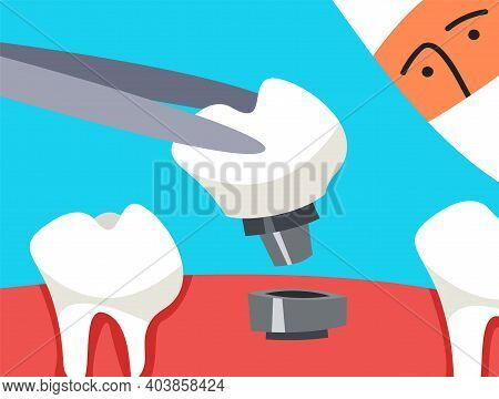 A Tooth On A Pin Held By A Doctor In A Forceps. Oral Care Concept.