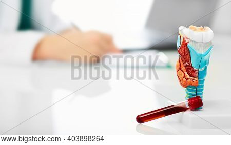 Thyroid Anatomical Model And Thyroid Hormone Blood Test Tube On The Endocrinologists Table, Close-up
