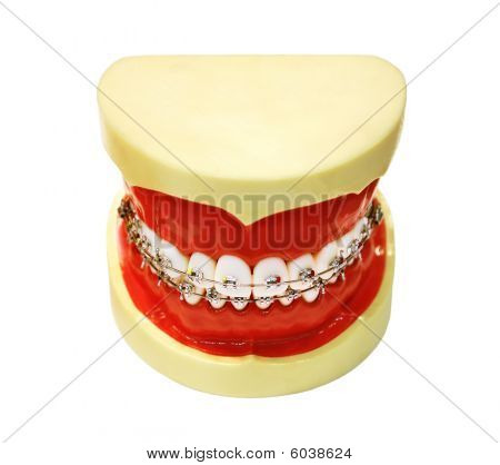 Human Tooth Jaw With Braces
