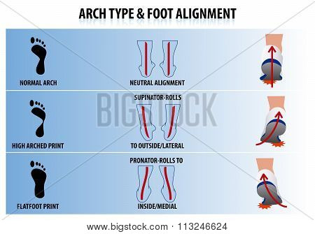 Arch Type And Foot Alignment