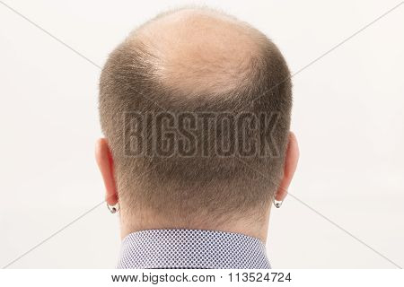 Premature baldness, man, 40s, white background