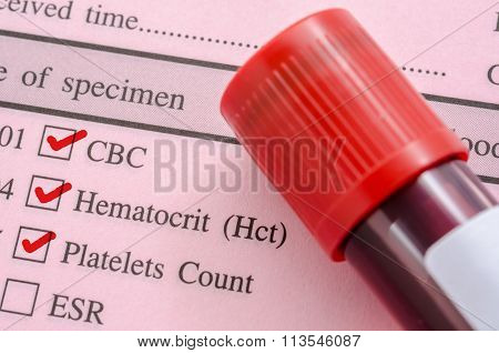 Cbc, Hemotocrit, Platelets Count With Request Screening Test