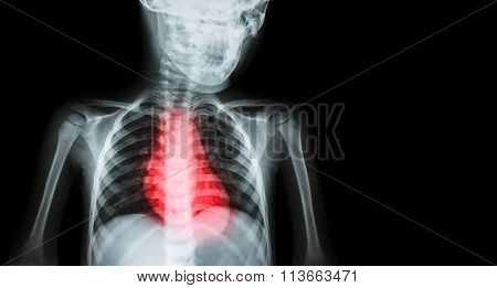 Ischemic Heart Disease , Myocardial Infarction ( Mi ) ( Film X-ray Body Of Human With Heart Disease