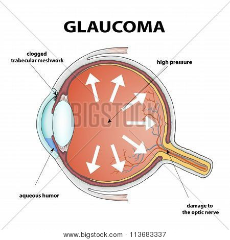 Glaucoma. Stock Illustration.