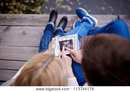 Happy Couple Are Holding Ultrasound Scan Of Their Baby