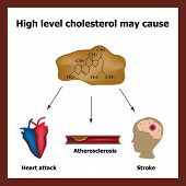 High cholesterol causes - heart attack, stroke, atherosclerosis. Chemical formula cholesterol. Cholesterol plaques. Infographics. Vector illustration. poster