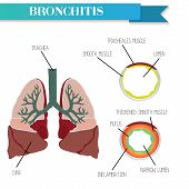 Healthy and inflamed bronchus. Chronic Bronchitis. Vector poster
