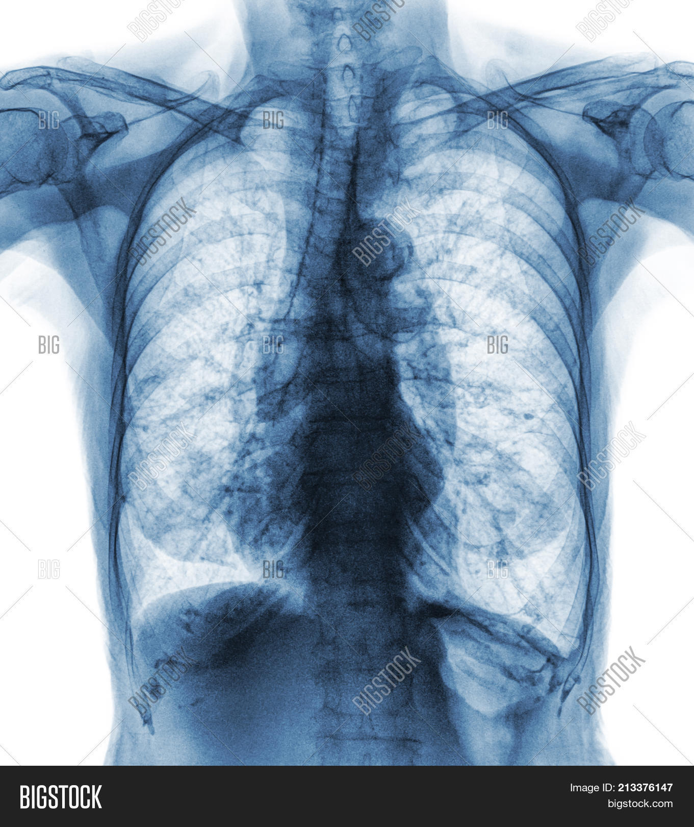 Normal Chest X-ray Old Image & Photo (Free Trial)   Bigstock