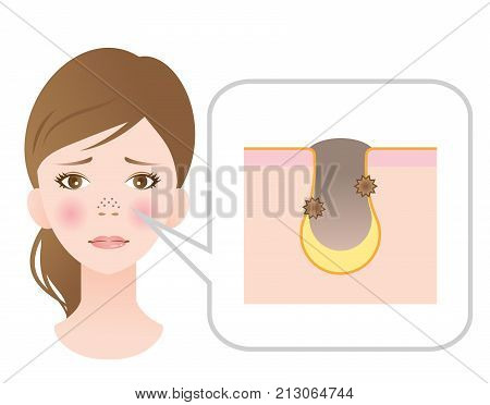 clogged pores on nose of female face. blackhead and skin diagram showing clogged pores. skin care and beauty concept