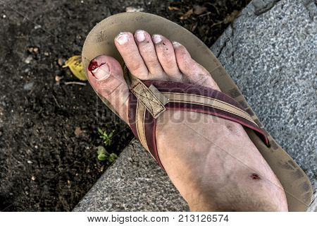 Accident flip flop cut foot nail toe have a bloody and bleeding wound from injury after slipping