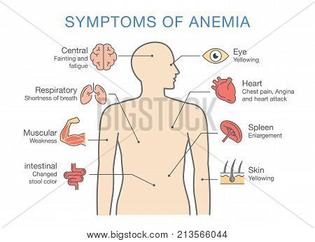 Symptoms common to many types of Anemia. Illustration about medical diagram for diagnose a disease or condition.