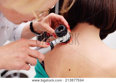 Doctor examining birthmarks and moles patient. examination of birthmarks and moles.the doctor examines the patient's mole
