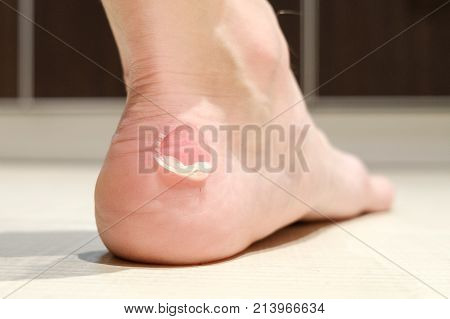 Big bloody callus on man's heel. Closeup foot of man