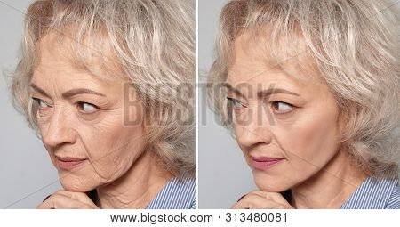Beautiful mature woman before and after biorevitalization procedure on grey background, closeup poster