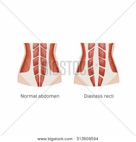Diastasis Recti. Abdominal Muscle Diastasis After Pregnancy. Abdominal Problems. Anatomy Vector Illu