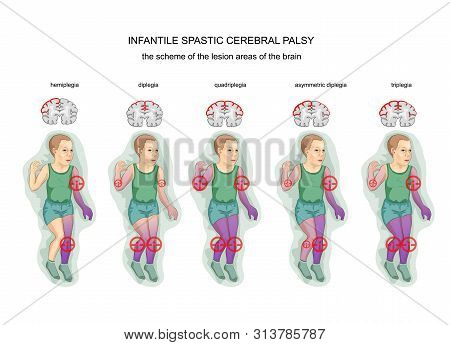 Vector Illustration Of Diagram Of Brain Damage With Spastic Cerebral Palsy