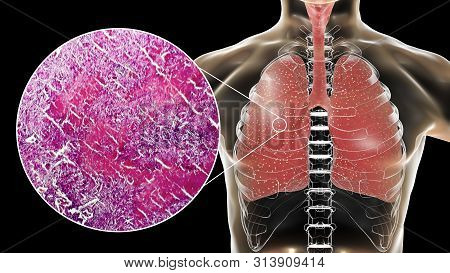 Miliary Tuberculosis, 3d Illustration And Light Micrograph Showing Histopathology Of The Lung Affect