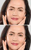 Beautiful mature woman before and after biorevitalization procedure, closeup poster