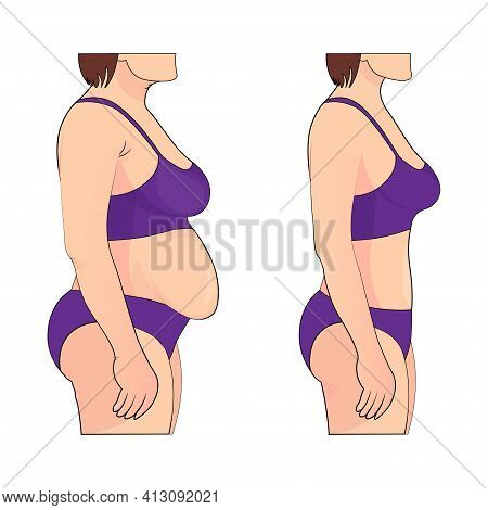 Woman S Body Before And After Weight Loss. Vector Illustration.