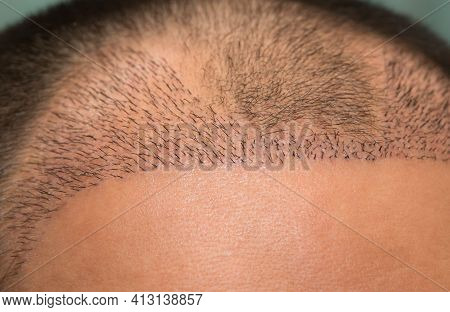 Close Up Top View Of A Man's Head With Hair Transplant Surgery With A Receding Hair Line. -  After B