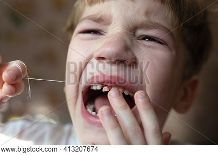 Little Kid With Open Mouth. Boy Who Is Trying To Tear Up His Milk Tooth By Thread. Feeling Of Pain A