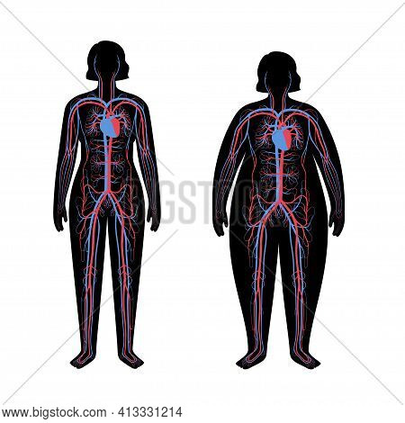 Human Arterial And Venous Circulatory System In Obese Female Body. Blood Vessels Diagram In Overweig