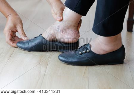 Elderly Woman Swollen Feet Putting On Shoes With Care Giver.